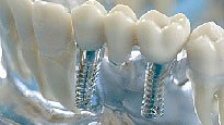 dental implants Manila